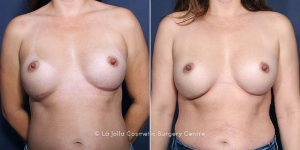 before after breast implant revision galaflex scaffold