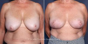 LJCSC Breast Implant Removal Patient Photo