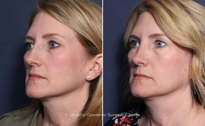 LJCSC Rhinoplasty Patient Photo