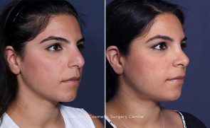 LJCSC Laser Hair Removal Patient Photo