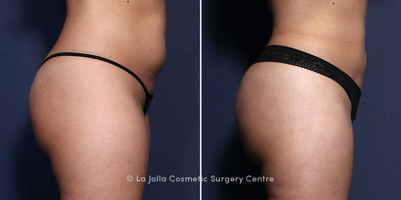 brazilian butt lift san diego before and after