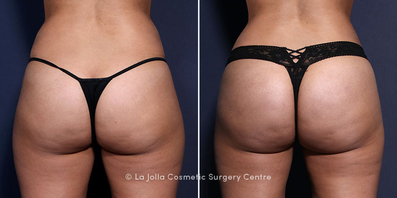 san diego brazilian butt lift before and after