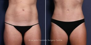 Dr. Brahme Tummy Tuck with Liposuction