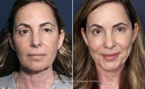 Dr. Wheeler Upper Eyelid Lift