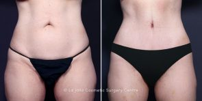 Dr. Smoot Tummy Tuck and Liposuction
