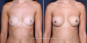 Dr. Saltz Breast Augmentation with Nipple Correction