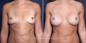 Dr. Salazar-Reyes Breast Implant Replacement