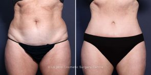 Dr. Smoot Tummy Tuck with Liposuction