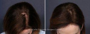 LJCSC Hair Restoration Patient Photo