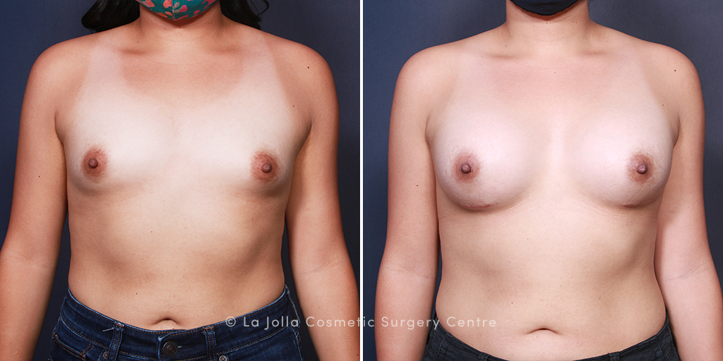 Dr. Salazar-Reyes Breast Augmentation