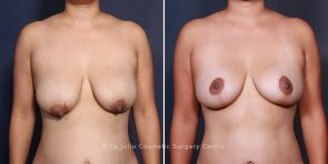 Dr. Salazar-Reyes Breast Lift, Liposuction & Tummy Tuck