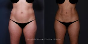 Dr. Salazar-Reyes HD Lipo With Buttocks Fat Transfer