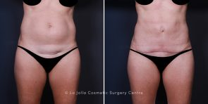 Dr. Smoot Tummy Tuck & Liposuction