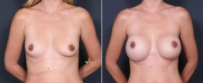 Dr. Brahme Breast Augmentation 20