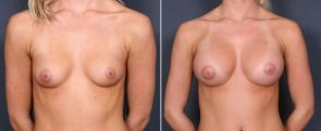 Dr. Brahme Breast Augmentation 23