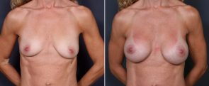 Dr. Brahme Breast Augmentation 25